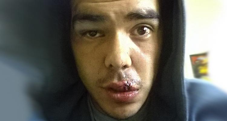 Photo of Dos jóvenes fueron salvajemente agredidos por patovicas